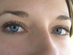 Vorteile Augenlasern